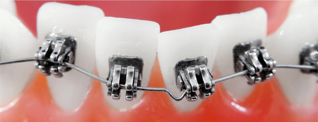 Woher kommen Zahnfehlstellungen und wann sollte man zum Kieferorthopäden?